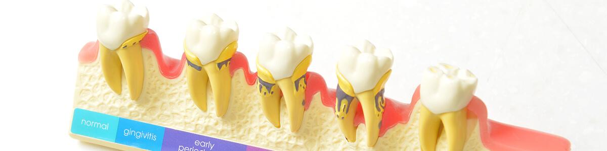 歯周病が招くこわい病気