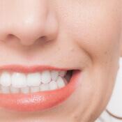 歯ぎしり予防